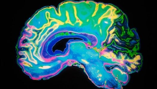 New Alzheimer's Treatment Gives Hope to Patients, Called Breakthrough