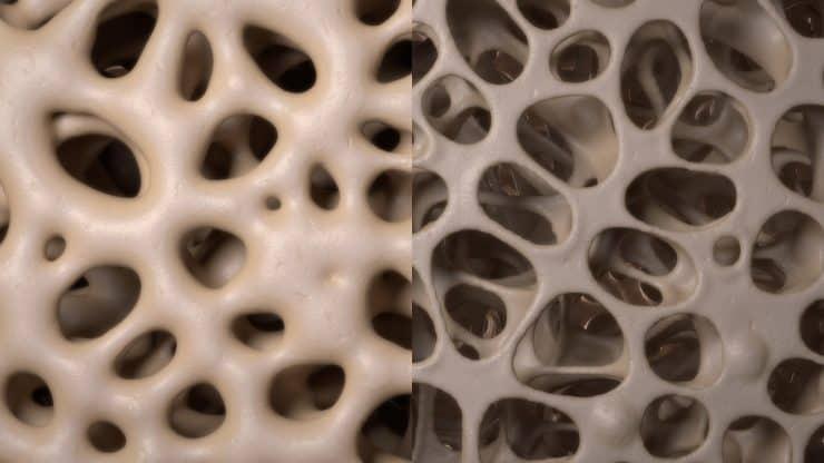 Bone-Density